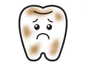 黄ばんだ汚い歯