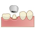 変色した差し歯を白くする方法