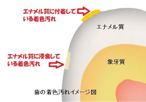 歯の着色汚れ構成図