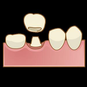 セラミッククラウンで歯を白く
