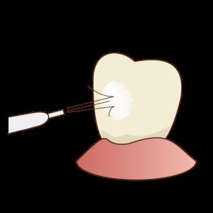 PMTC(研磨)で歯を白く